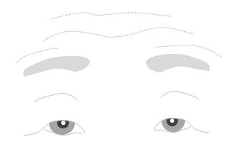 皮膚弛緩性眼瞼下垂