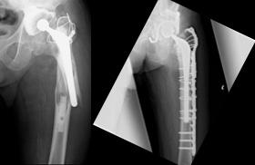 「ゆるみ+骨折」に対する再置換術症例
