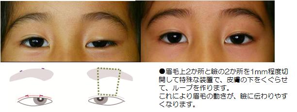 先天性眼瞼下垂に対する 筋膜つり上げ術