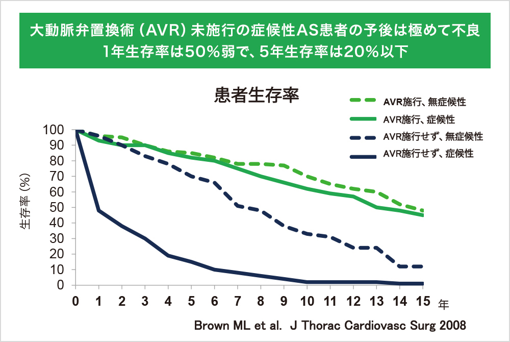 大動脈弁置換術(AVR)未施行の症候性AS患者の予後は極めて不良。1年生存率は50%弱で、5年生存率は20%以下