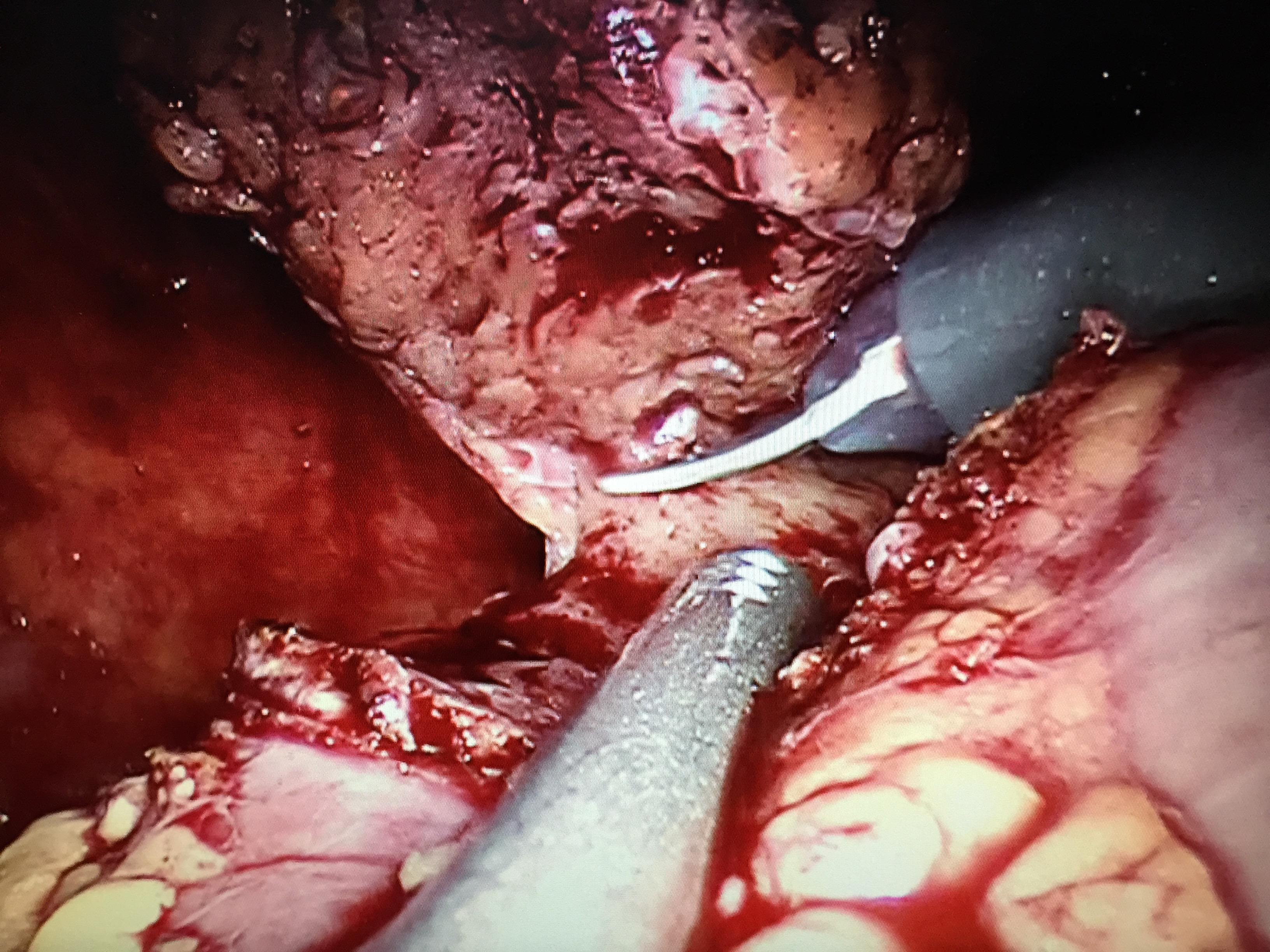 腎がんのロボット手術1