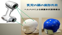 ヘルメットによる頭蓋形状誘導療法