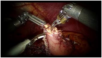 ロボット手術映像