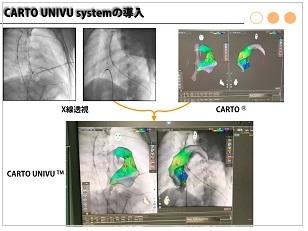 小児不整脈科最近のトピックス