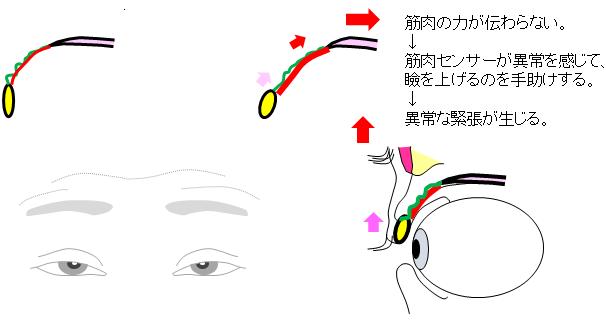 腱膜性弛緩性眼瞼下垂