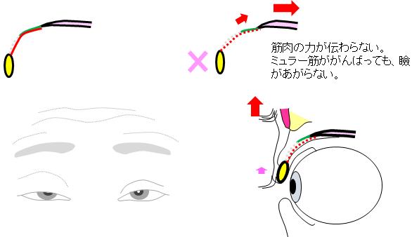 腱膜解離性眼瞼下垂