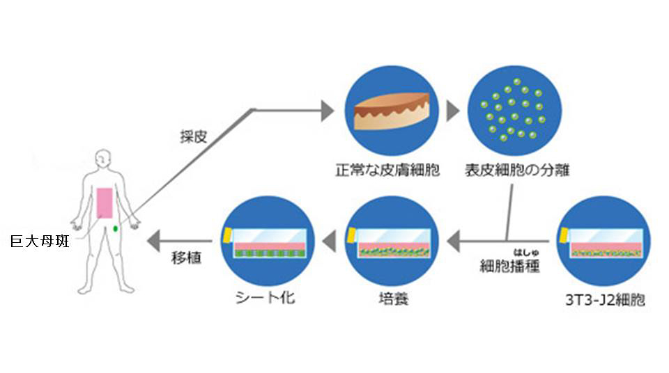 シート化された培養表皮