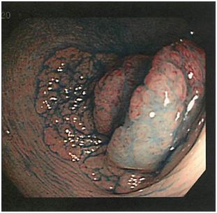 早期胃がん ESD前