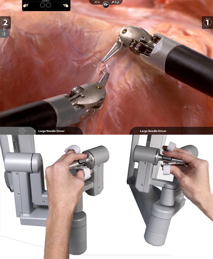 腎がんのロボット手術2