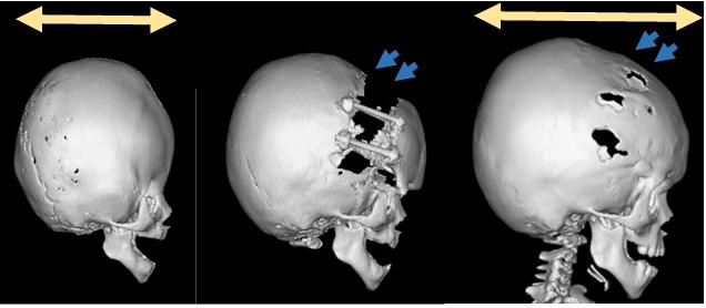 短頭症に対して骨延長法にて頭蓋形成術を施行。術後、骨延長した部分に新しく骨の形成を認め、頭の形のバランスが改善している。(青矢印)