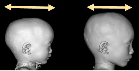 頭蓋形成術(一期法)