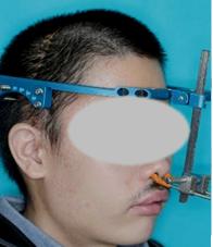 創外(ハロー)固定型骨延長器