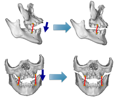骨延長術と同時に顎間ゴムの装着