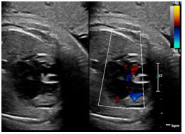胎児心臓超音波検査写真⑥