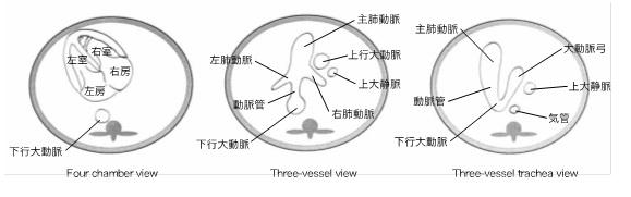 胎児心臓超音波検査画像④