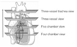 胎児心臓超音波検査画像②